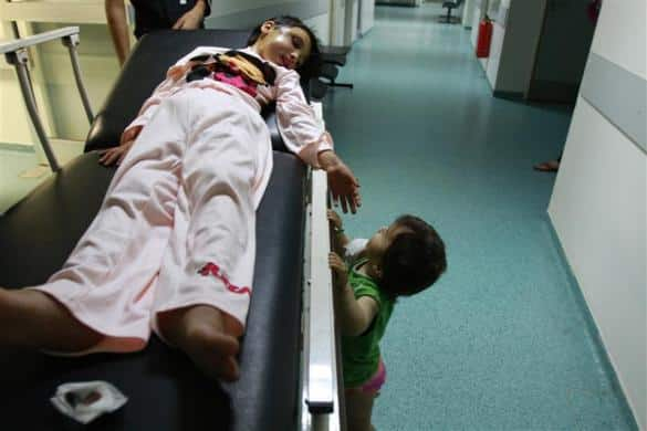 A  6-year-old Syrian girl lies on a stretcher as she looks at her sister at a hospital in Tripoli, northern Lebanon